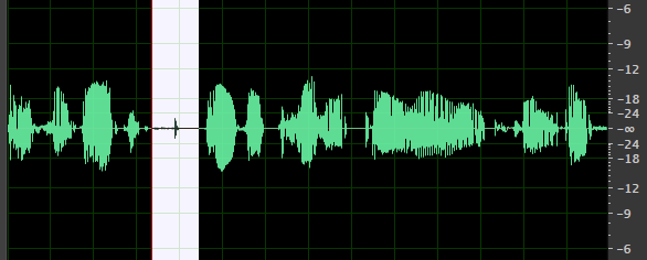 Dialogue Waveform Compressed with Mouth Clicks